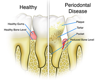 Periodontics Non-surgical