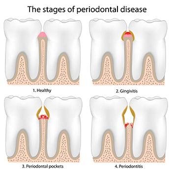 Periodontics Surgical